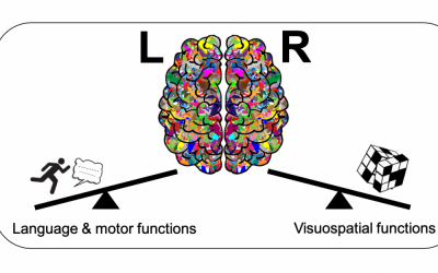 Asymmetrical brain patterns can help identify subgroups of autistic people