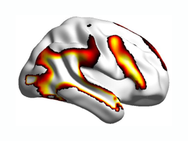 Autistic people's social brain activity is not reduced