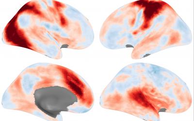 Distinct behavioural profiles of autism matter